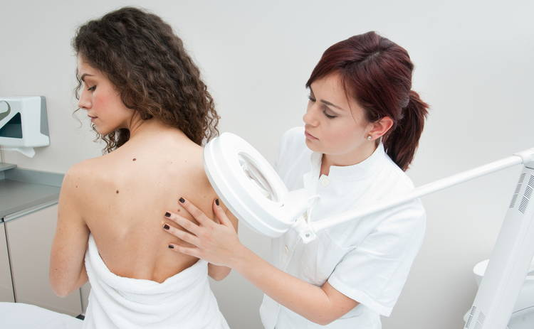 Паника – стоп! Как проявляется меланома на самом деле?