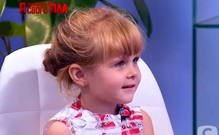 Я соромлюсь свого тіла: счастливое исцеление 4-летней Илоны Рудой - фото до и после