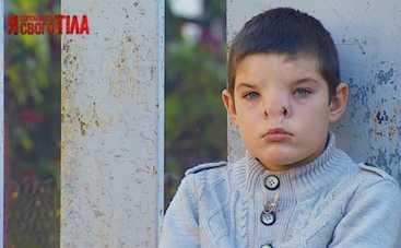Я соромлюсь свого тіла 6 сезон: врачи отправятся к мальчику с деформированным черепом