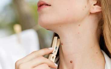 Как ухаживать за родинками и какие из них опасны: важные советы дерматолога