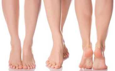 Врачи рассказали о неочевидных причинах болей в ногах: вы удивитесь
