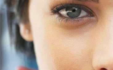 ТОП-3 причины, почему у вас появились круги под глазами