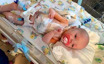 Народитися із хворим серцем може будь-яка дитина