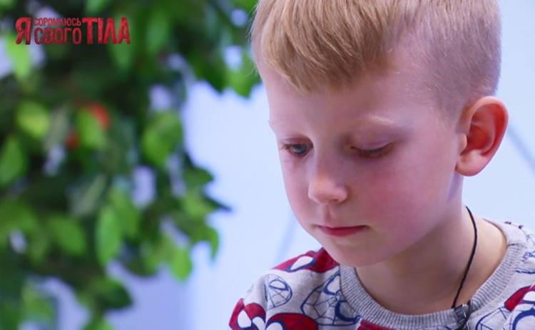 Я соромлюсь свого тіла 7 сезон: врачи спасут мальчика, который потерял глаз из-за несчастного случая