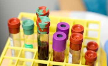Какие болезни можно предсказать по группе крови