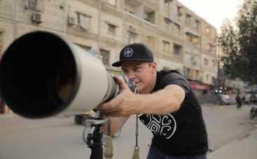 Мир наизнанку-12: Дмитрий Комаров познакомится с «человеком-лисой»