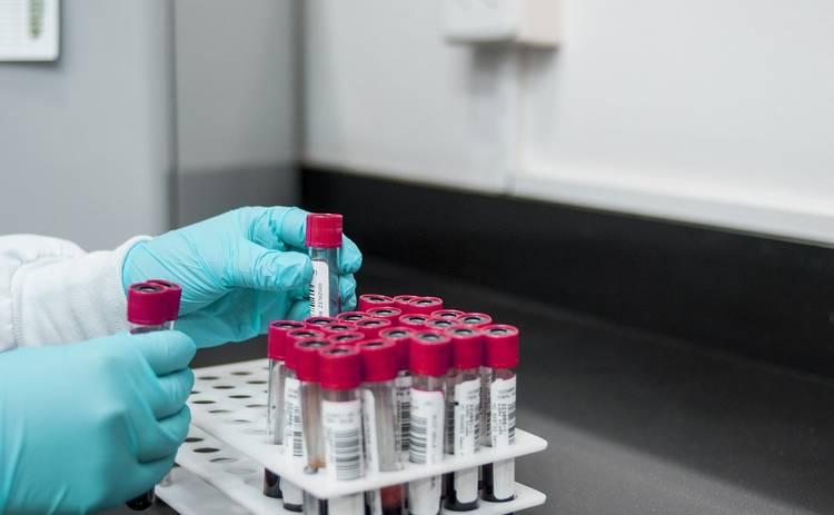 Гарвардские ученые рассказали об особенностях людей с четвертой группой крови