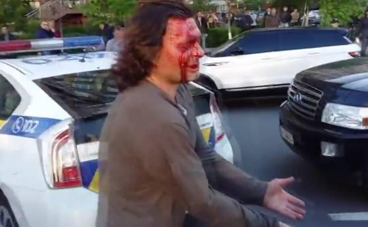 Олимпийский чемпион устроил кровавую драку с киевской полицией