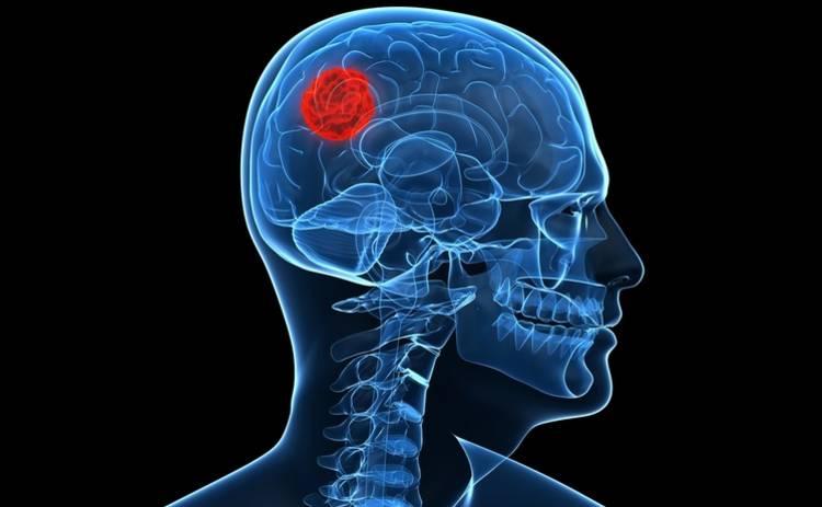 Ученые нашли новый метод борьбы с раком мозга