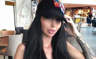 «Злоупотребляет»: модель Playboy жестко раскритиковали после пластической операции