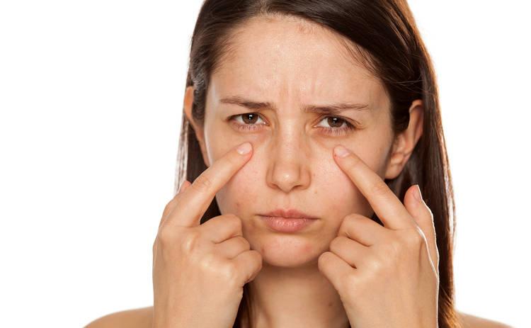 Медики рассказали о причинах появления синяков под глазами