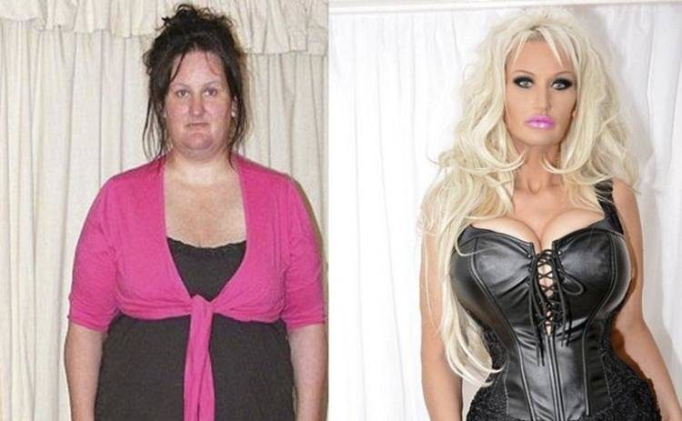 Чудеса случаются: англичанка похудела вдвое, чтобы быть похожей на Барби