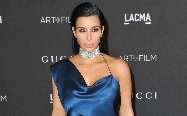 Ким Кардашьян и другие звезды, превратившие свои недостатки в достоинства