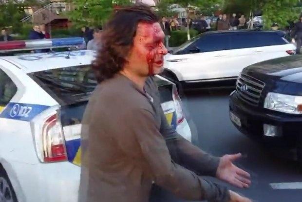 В Киеве полиция при задержании разбила голову водителю